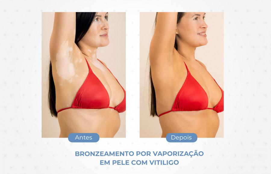 Bronzeamento Saudável em Peles com Vitiligo